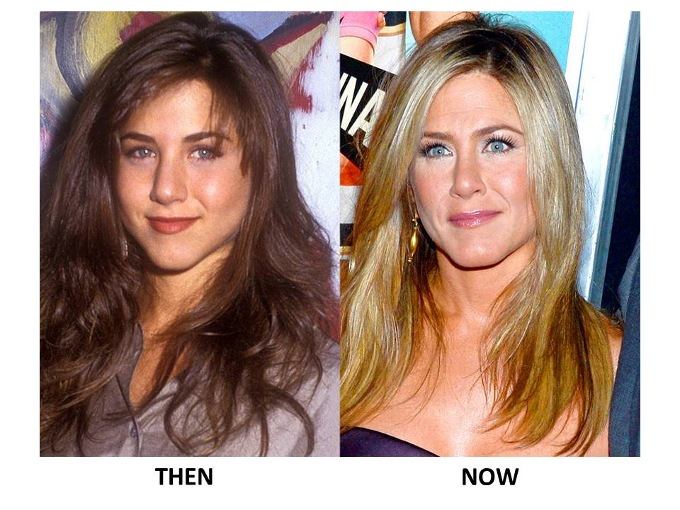 10 Celebs You Won T Believe Underwent Plastic Surgery
